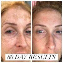 60 day results BMVT